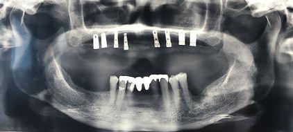 Bridge complet sur implant