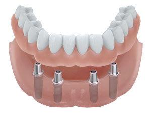 prothese-implants-dentairejpg