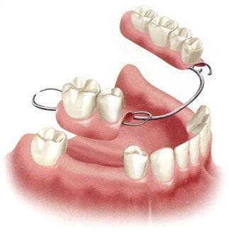 prothese-dentaire-partiel