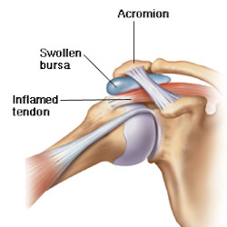 Shoulder tendinitis and bursitis are usually overlapping injuries.