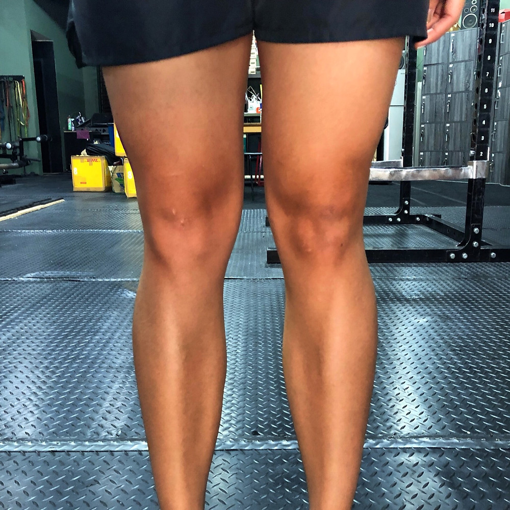 Can you figure out which knee is injured?