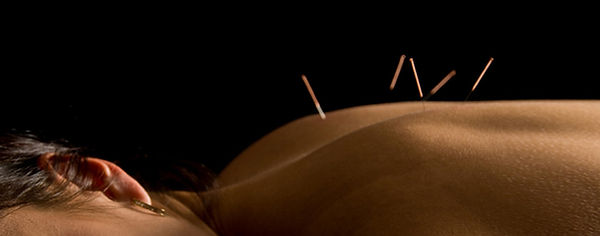 Woman laying face down with acupuncture needles in her upper back