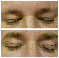 Male client desired more color consistency through brow line