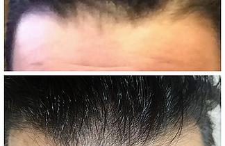 Scalp Micropigmentation img 3