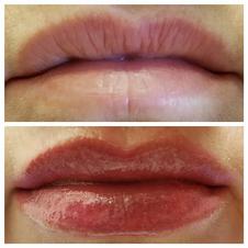 Full Lip Procedure