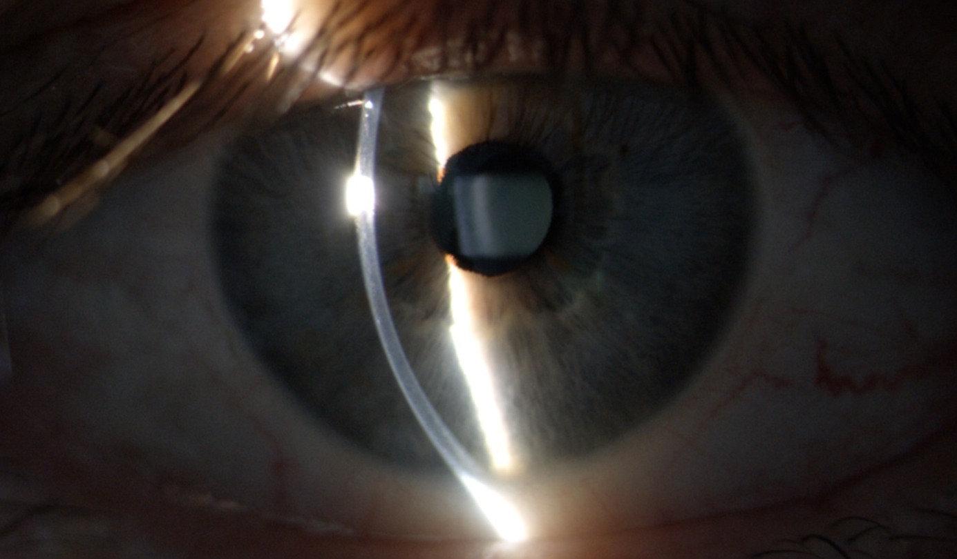 Contrôle annuel des lentilles de contact