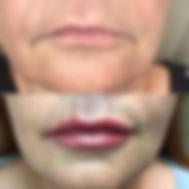 Botox02