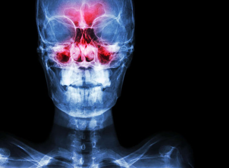 5 Ways To Fix Your Sticky Sinuses