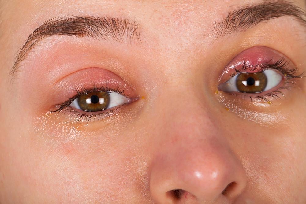 Stye, left upper eyelid