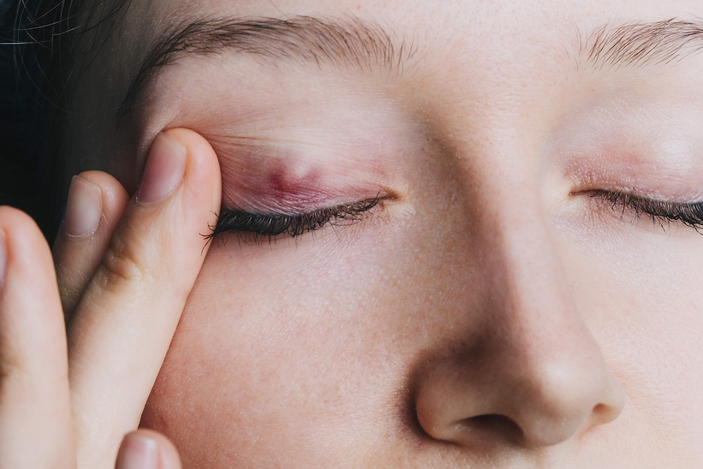 Right upper eyelid chalazion