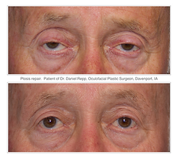 Before and after ptosis repair surgery.