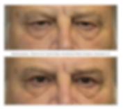 Before and after upper eyelid blepharoplasty (upper eyelid lift).