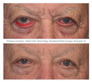 Before and after ectropion repair sugey.