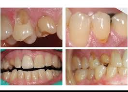 Contoh hakisan gigi