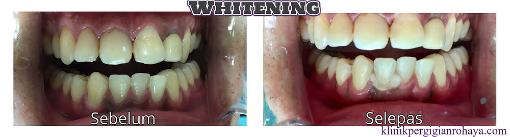 Klinik Pergigian Rohaya Whitening