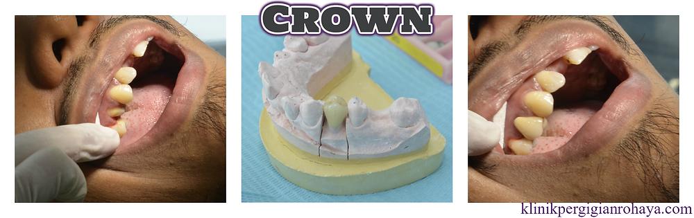 Crown Klinik Pergigian Rohaya