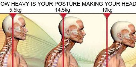 How Heavy Is Your Posture Making Your Head?