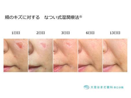 なつい式湿潤療法® 顔のキズ