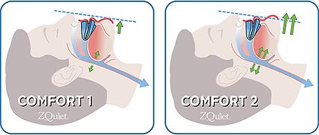 BB-Comfort.png
