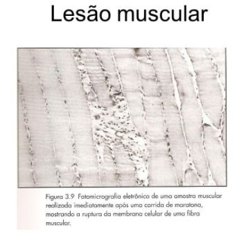 lesão muscular - dor muscular tardia - GranDoctor