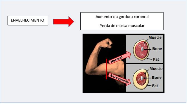 Sarcopenia - GranDoctor