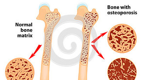 Osteoporose - um problema que afetará a todos