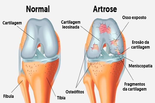 Artrose - GranDoctor