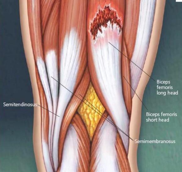 Lesão muscular desenho