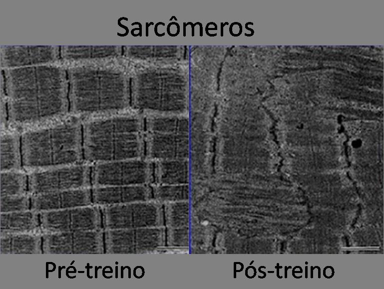 Microlesão muscular - grandoctor