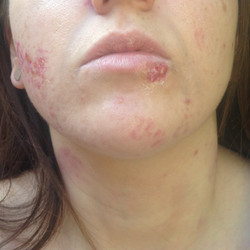 Coldsore and acne