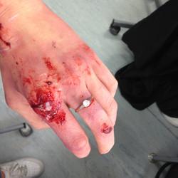 Badly Damaged hand