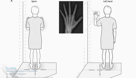 Hand position for slot-scanning radiograph.