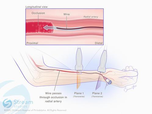 Catheterization through occluded radial artery.