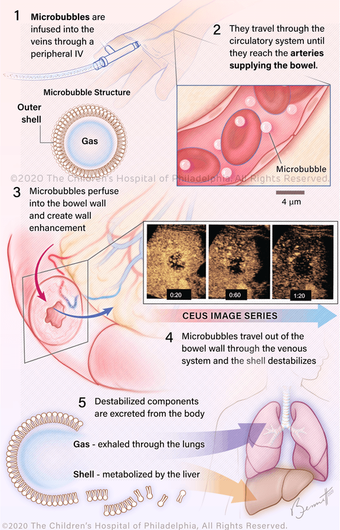 006-GI-Microbubbles-Overview-2020.png
