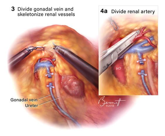 Laparoscopic nephrectomy surgical illustration
