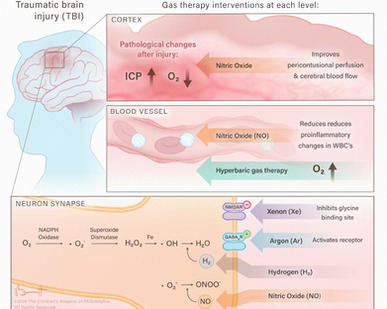 Inhalational Gases for Neuroprotection in Traumatic Brain Injury
