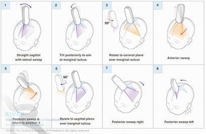 Method of comprehensive ultrasound imaging of infant brain