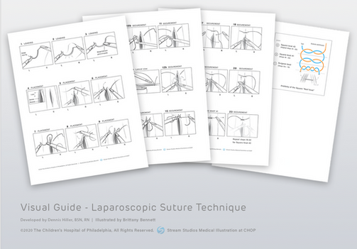 Laparoscopic suture technique, an illustrated guide