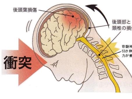 むちうち-2(首~肩の症状)