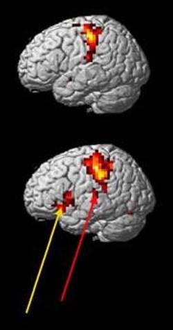 Sol Beyin Görüntüsü