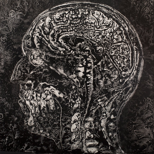 MRI Monochrome   (24 x 24 inches)