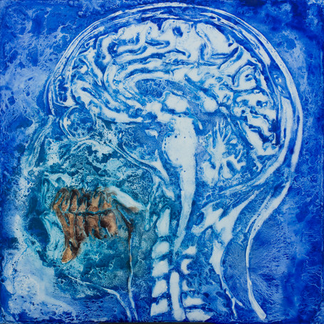 NORMAN'S MRI v4, Pigment on Panel, 24 x 24 inches