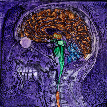 NORMAN'S MRI v2, Pigment on Panel, 24 x 24 inches
