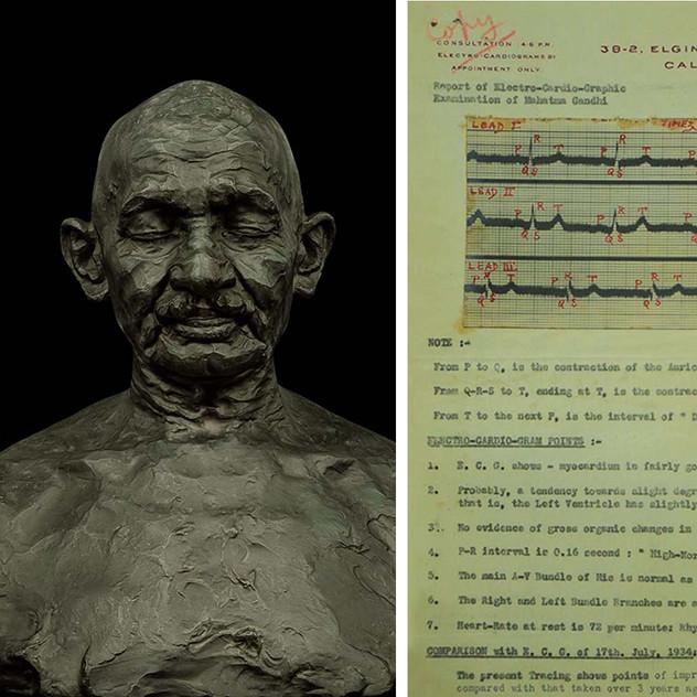Mahatma Gandhi's heart sounds