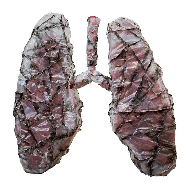 Covid lungs (2020)