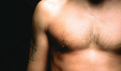 Gynecomastia and male breast reduction surgery in Houston Texas