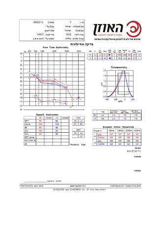 בדיקת שמיעה לדוגמא ממערכת audiotest