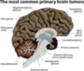 bigstock-The-most-common-primary-brain--