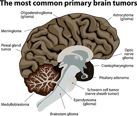 bigstock-The-most-common-primary-brain--