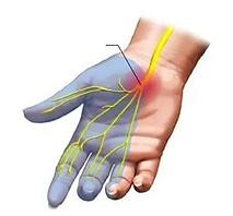 손목터널증후군.png